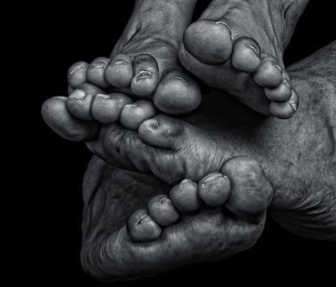 ריח כפות רגליים